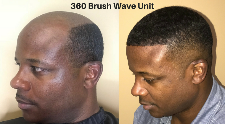 360 Permanent Brush Wave Unit (Non-Surgical  Hair Replacement)