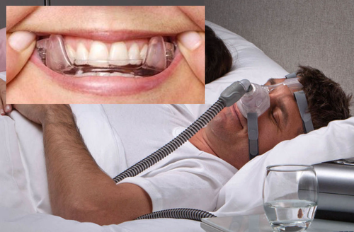 CPAP or Oral Appliance - A Primer for Patients (CLOUD) BY: Dr. John Viviano - Updated October 15, 2019