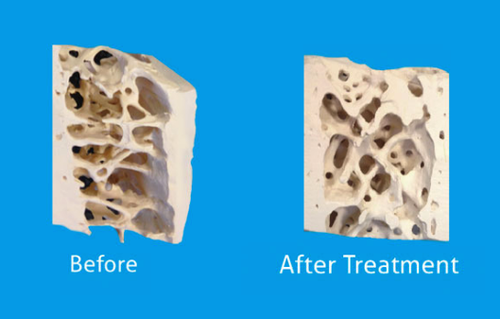 Osteoporosis - the impact, dangers and opportunities